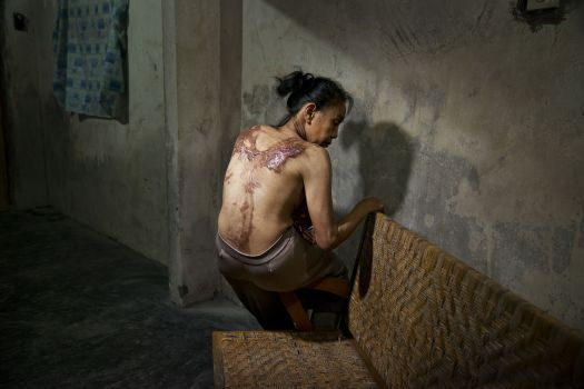 """Sumasri, possibly in her late 60s, from Indonesia, abused in Malaysia.  """"I go to the clinic regularly to get medication. Now it is not painful any more. It was most painful the first four months."""""""